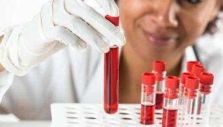 Hemoglobin yüksekliği